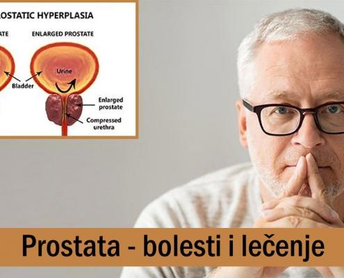 Prostata - bolesti i lečenje