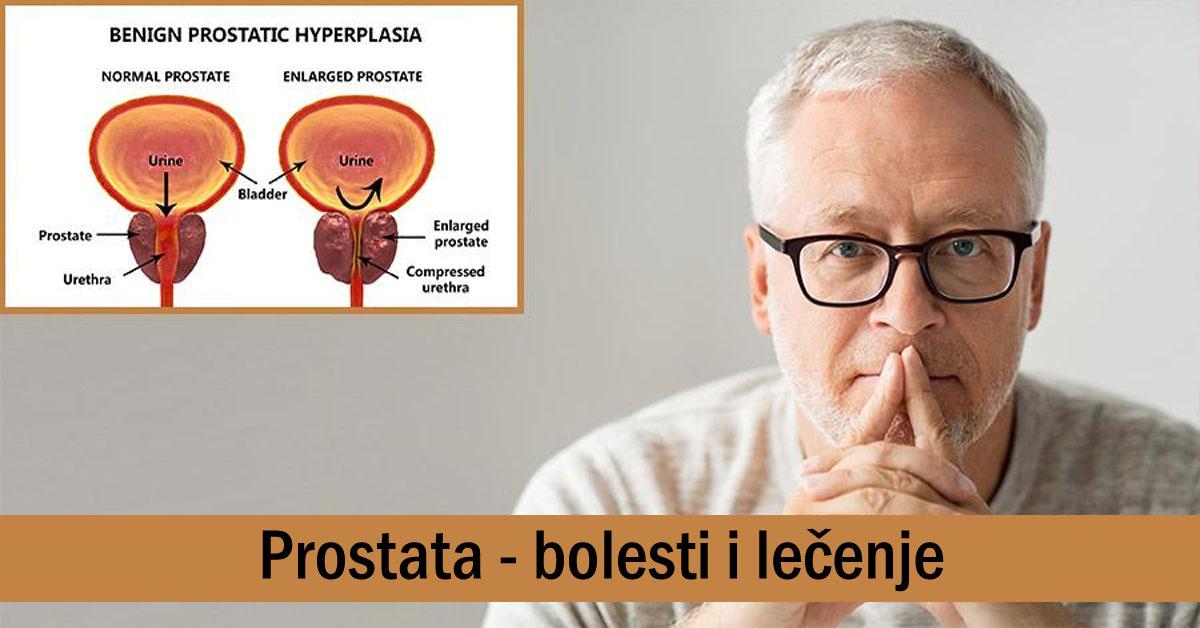 Sült tökmag prostatitis kezelésére vagy szárítva