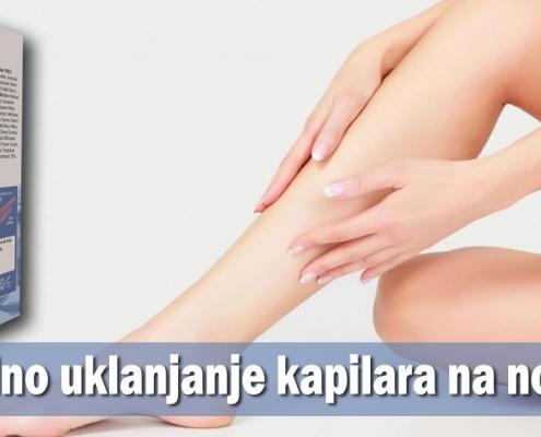 Prirodno uklanjanje kapilara na nogama