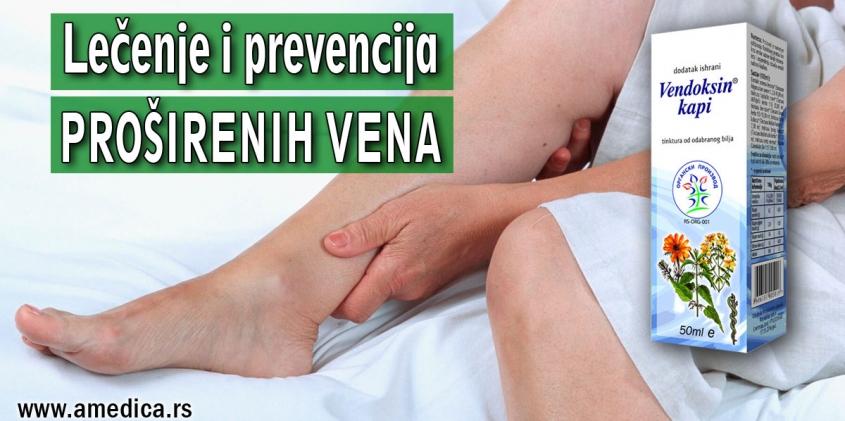 Lečenje i prevencija proširenih vena