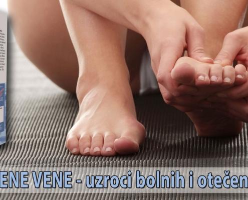 Proširene vene - uzroci bolnih i otečenih nogu