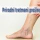 Prirodni tretmani proširenih vena
