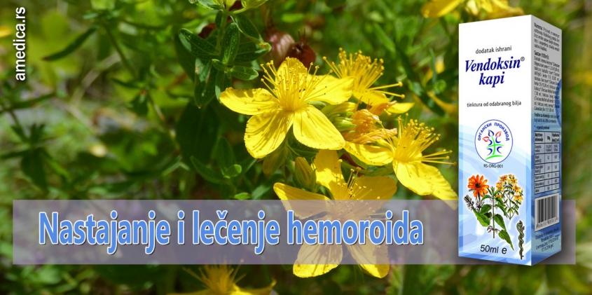 Nastajanje i lečenje hemoroida
