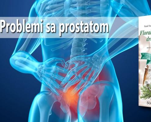 Problemi sa prostatom