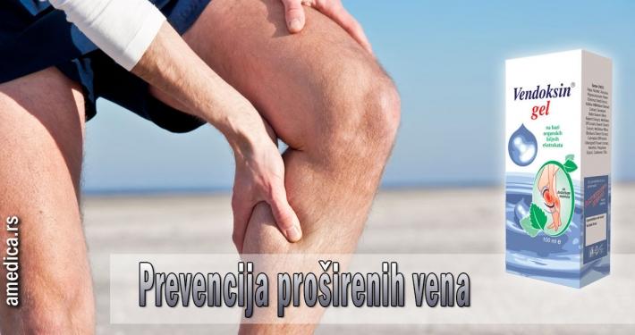 Prevencija proširenih vena