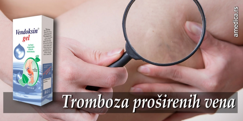 Tromboza proširenih vena