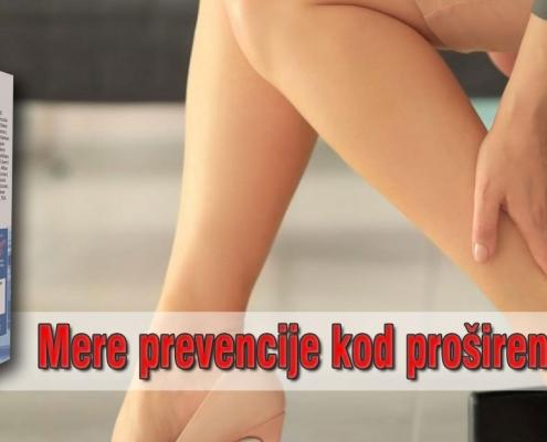 Mere prevencije kod proširenih vena