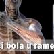 Uzroci bola u ramenima